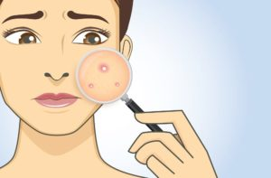 causes-of-pimples-occurring-1