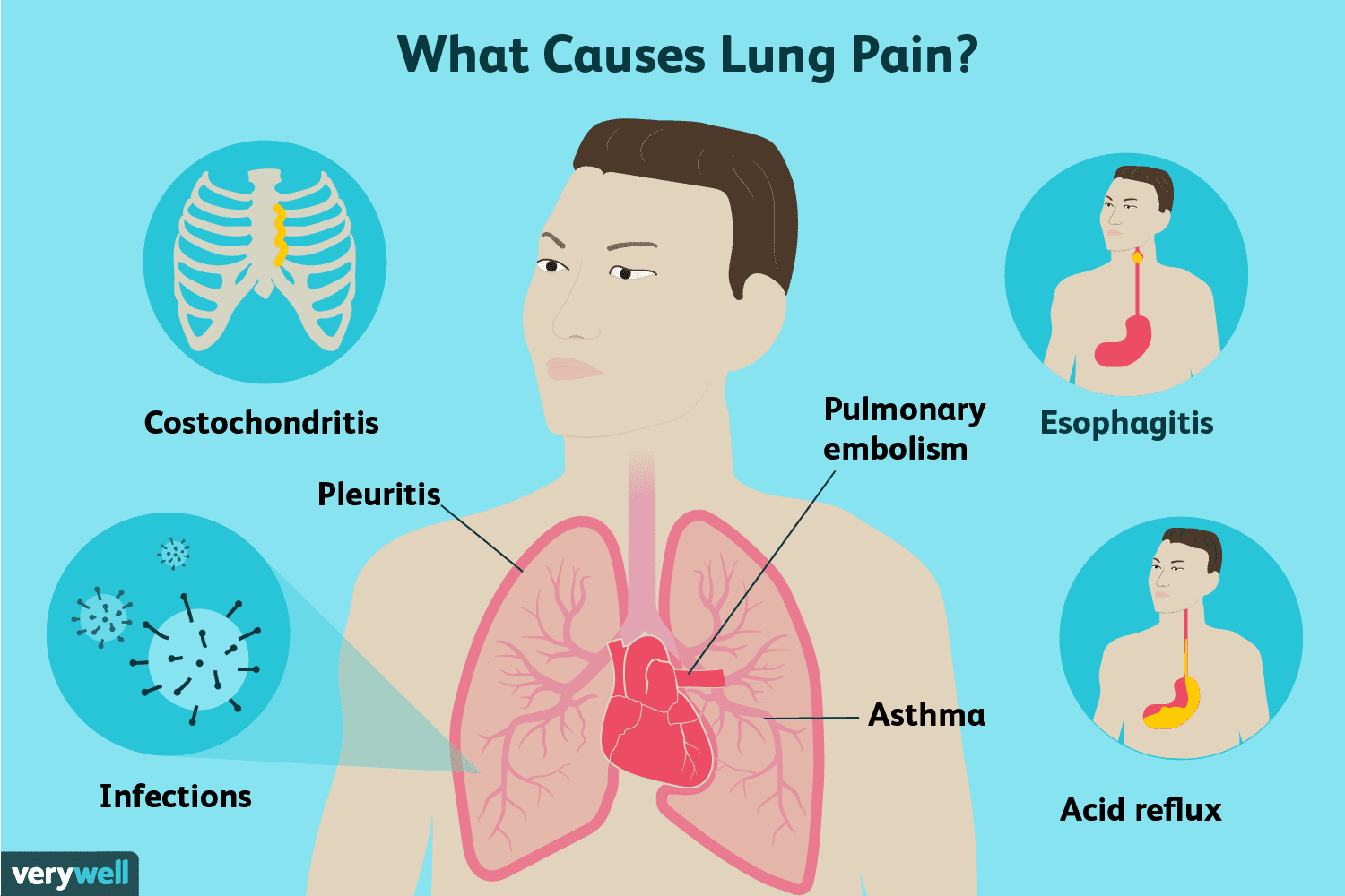 Why Lungs Infection Happens Pneumonia Teach All Rounder